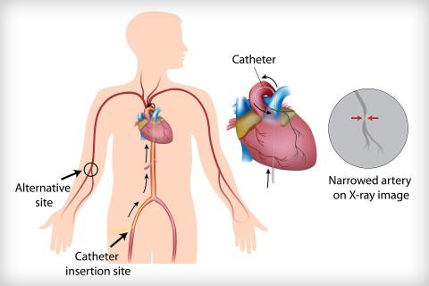 cardiac-catheterization